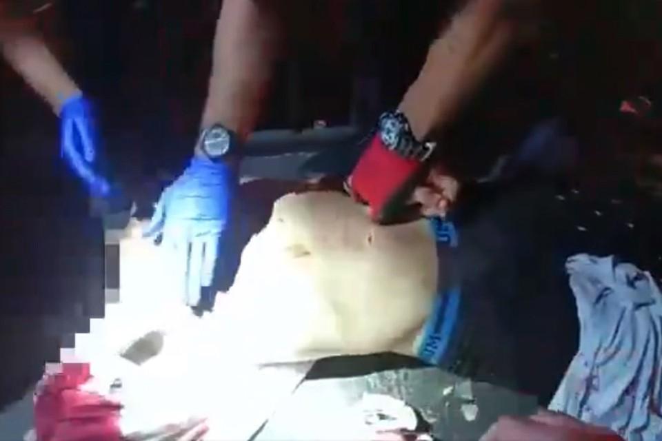 Когда скорая помощь прибыла на место, врачи избавились от импровизированной повязки и доставили раненого в больницу. Как позднее заявил лечащий врач, смекалка Кеннеди спасла жизнь пострадавшему парню.